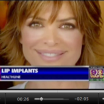 lip implant screenshot
