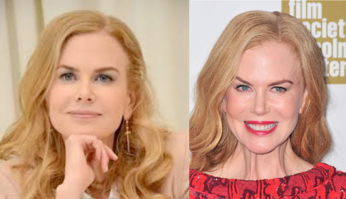 Kidman pre and post