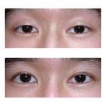 double-eyelid-surgery
