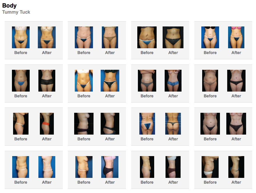 Anatomy of a Cosmetic Surgeon's website