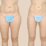 Thigh liposuction pre and post