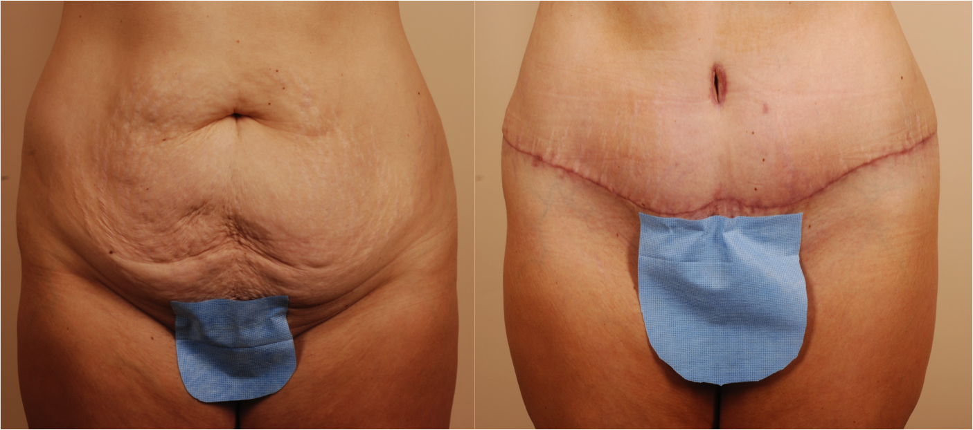 Tummy Tuck Vs Mini