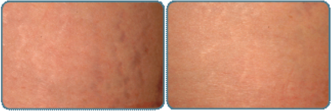 Stretch Marks Before And After Stretch Marks Before After
