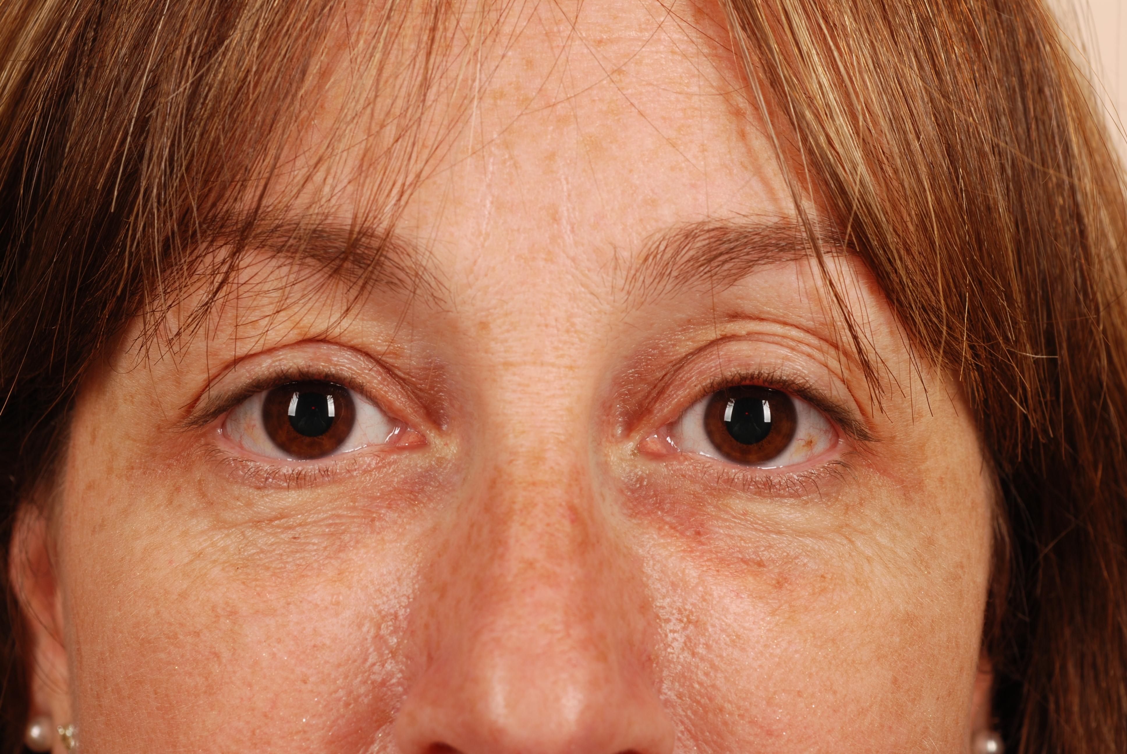 sunken eyes meaning - HD3872×2592