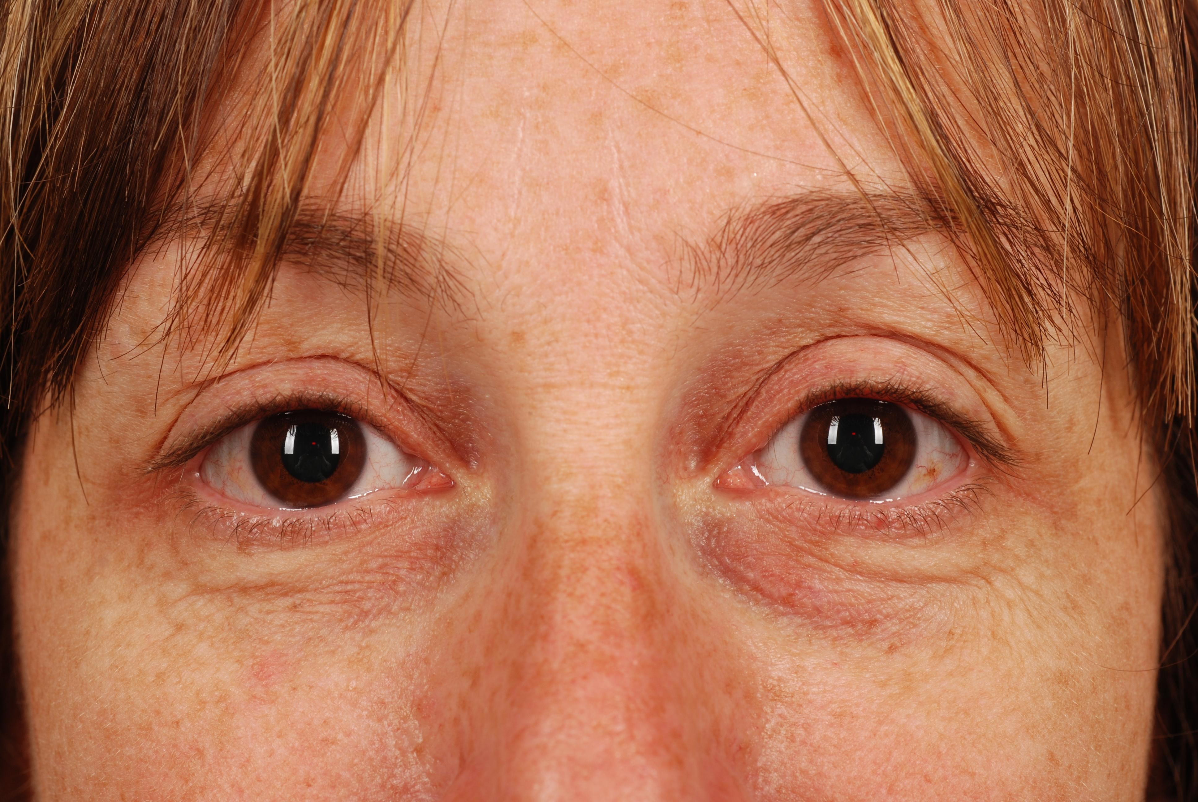sunken eyes treatment - HD3872×2592