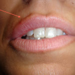 In this photo, you can see filler in one portion of the lip (arrow) with immediate results. Based on the patient