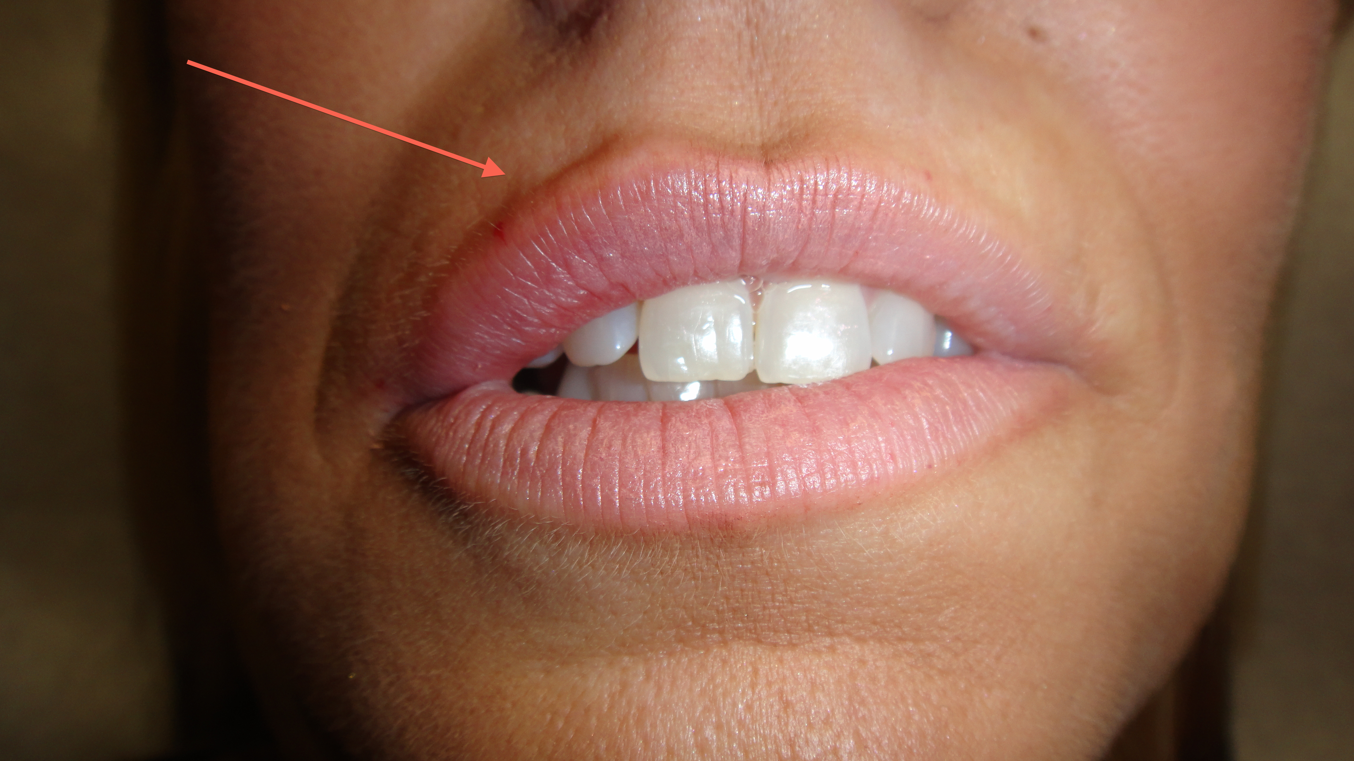 In this photo, you can see filler in one portion of the lip (arrow) with immediate results. Based on the patient's wants, you then inject a similar amount or more in the remaining portions of the lips.