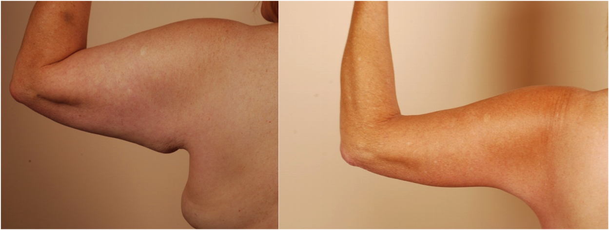 Scars From Upper Arm Lifts : Arm lift is it worth the scar