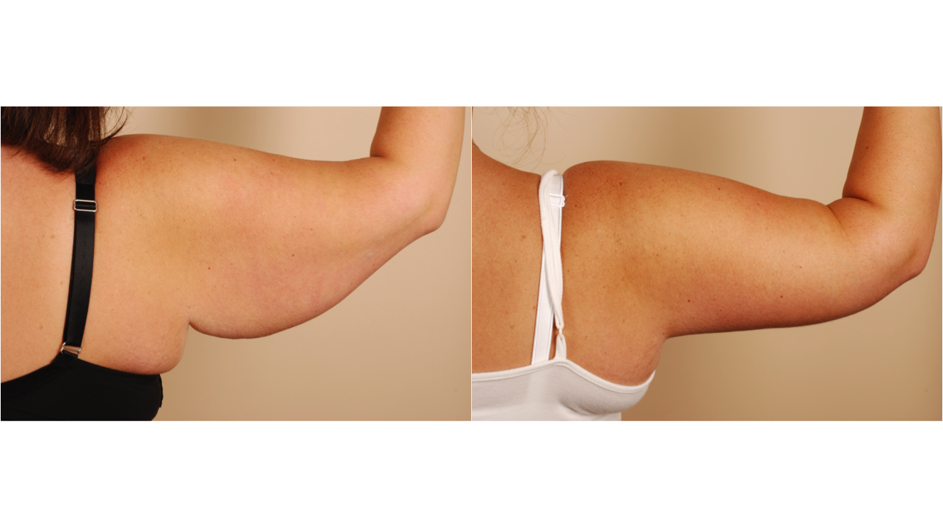 Scars From Upper Arm Lifts : Upper arm lift procedure benefits risks cost