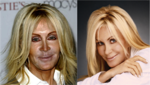 Celebrity Plastic Surgery Is It Just Bad Photos