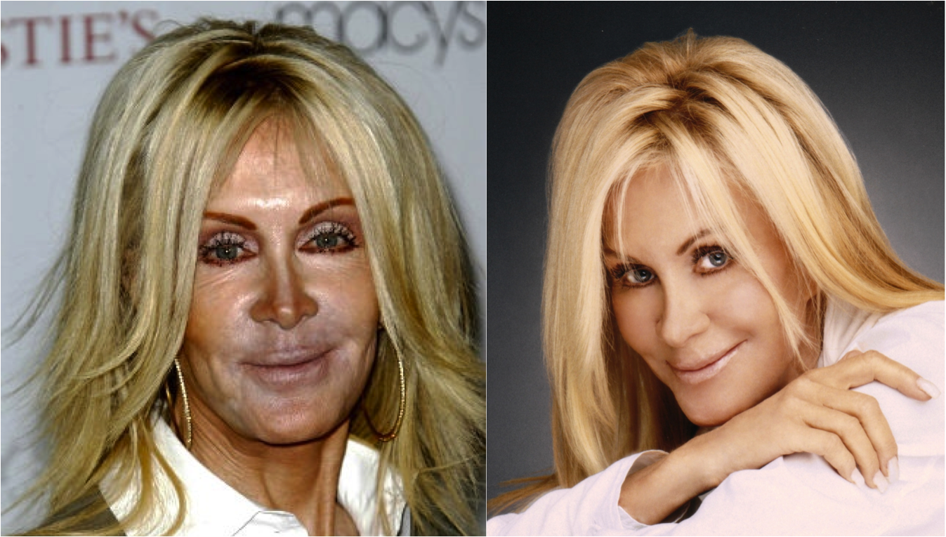 Celebrity Plastic Surgeries Gone Wrong, Before & After ...
