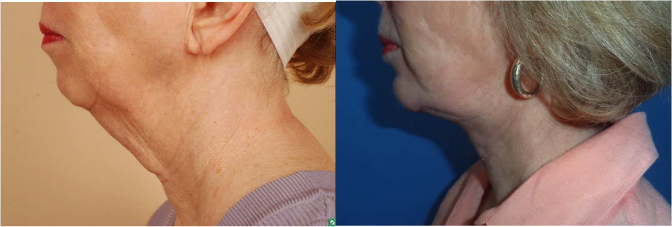 neck lift, facelift