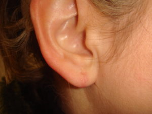 split earlobe repair