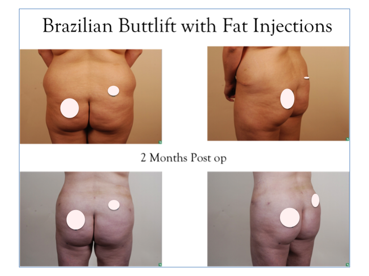 fat injections buttocks