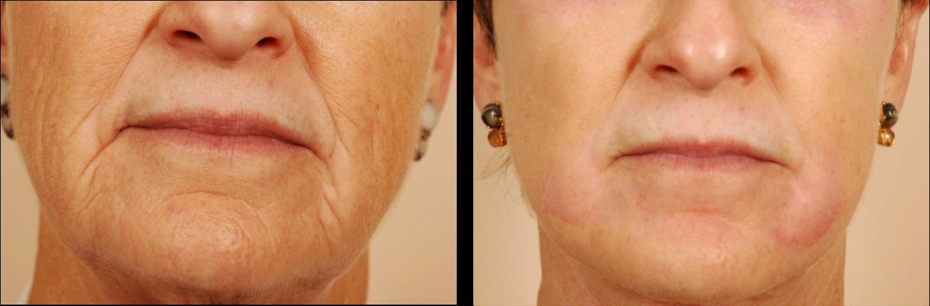 lip implants