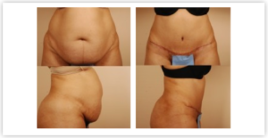 Abdominoplasty Cost
