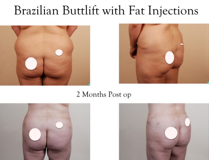 Brazilian Butt Lift Prices 94