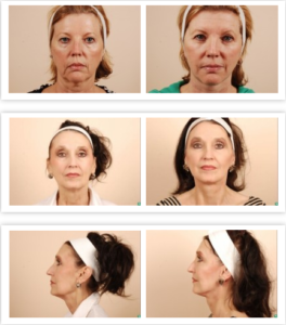 facelift cost