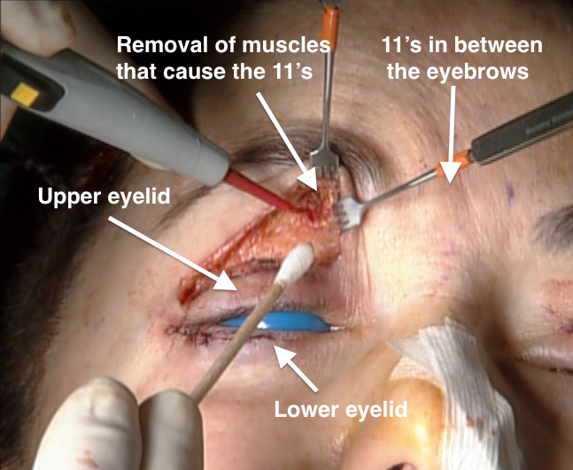 Permanently Remove The Wrinkles In Between Your Eyebrows Buildmybod