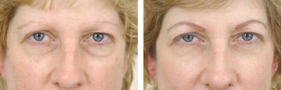 Under Eye Bags? Now you have options! BuildMyBod