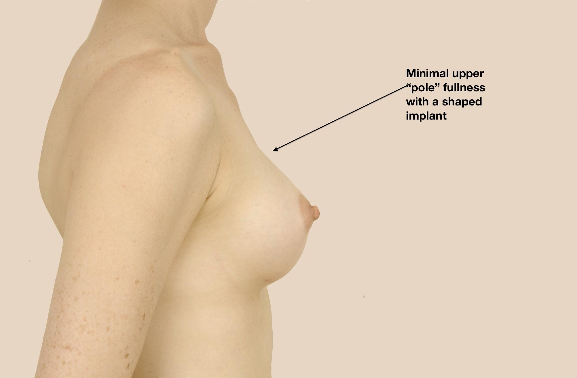 my implants:
