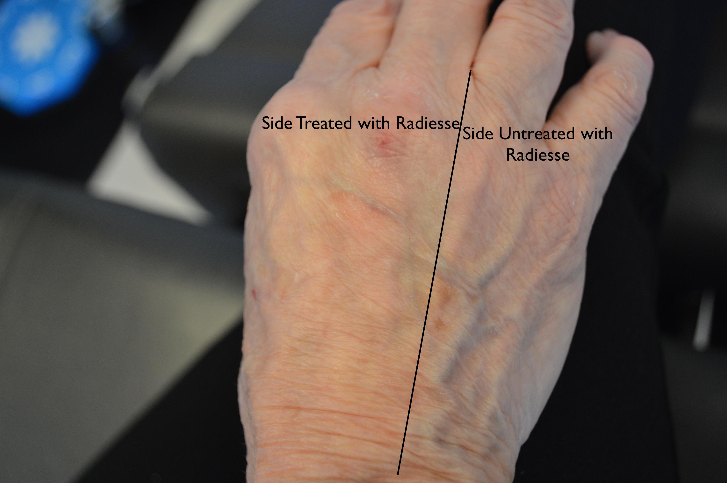 Radiesse Filler for Aging Hands | BuildMyBod Healthcare Pricing
