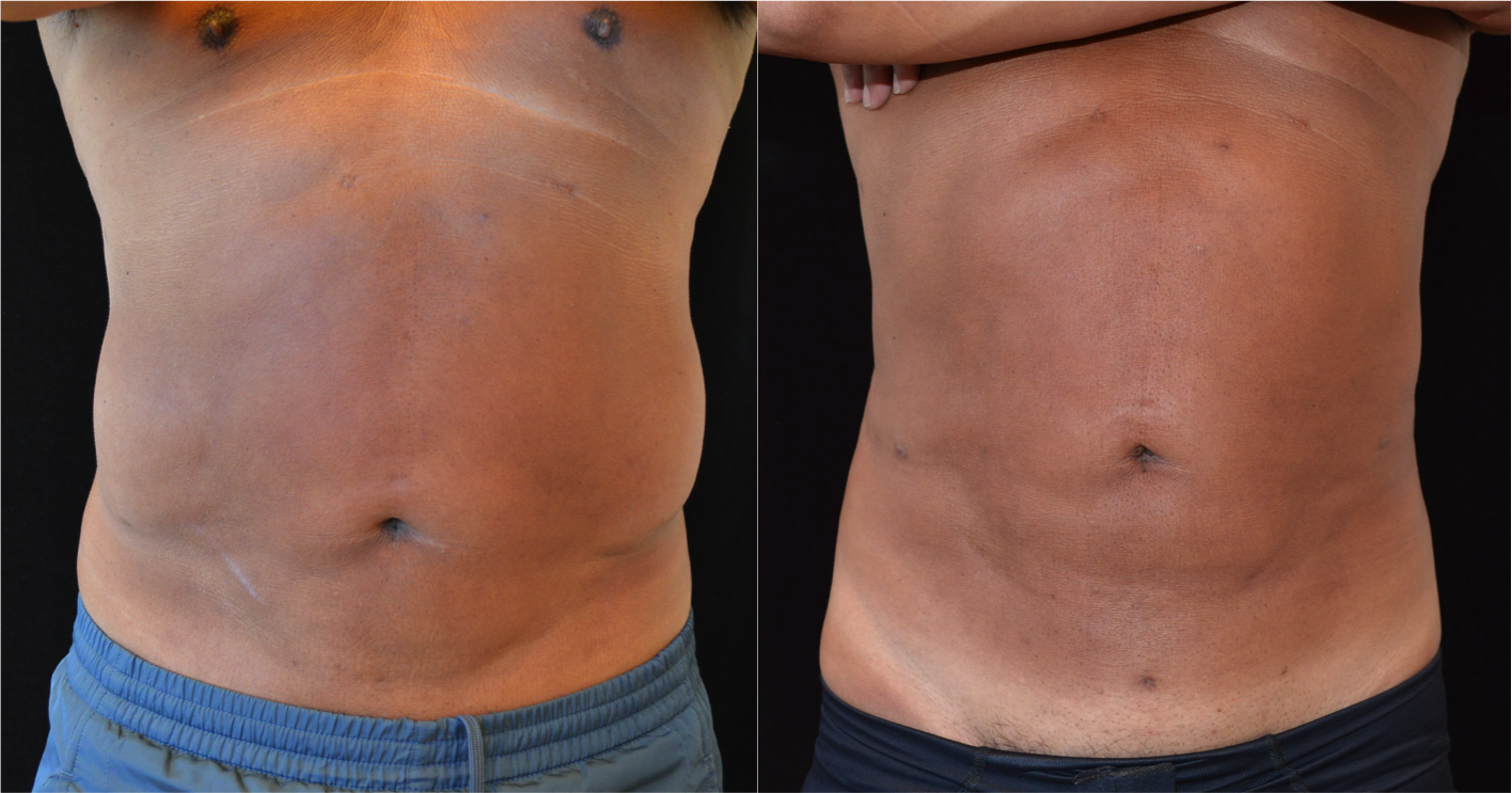 Liposuction | Worth It? Reviews, Pictures - RealSelf