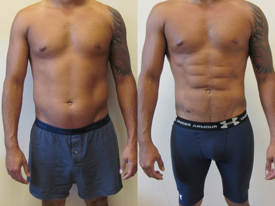 Traditional Liposuction For Lipo Etching Buildmybod
