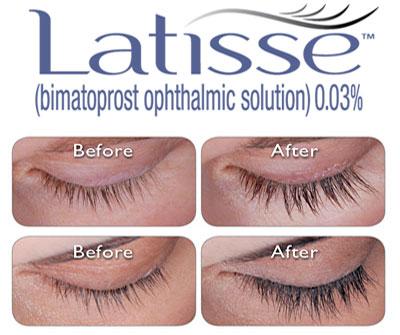 Image result for latisse logo download