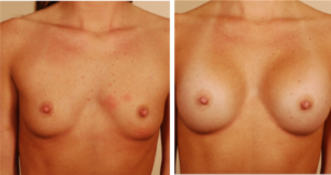 transax breast aug before and after