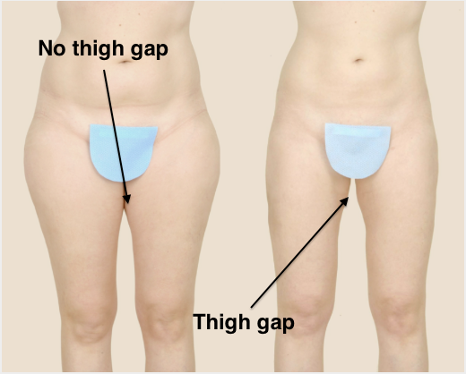 Liposuction For The Saddle Bags Buildmybod Health