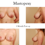 breast reduction breast lift