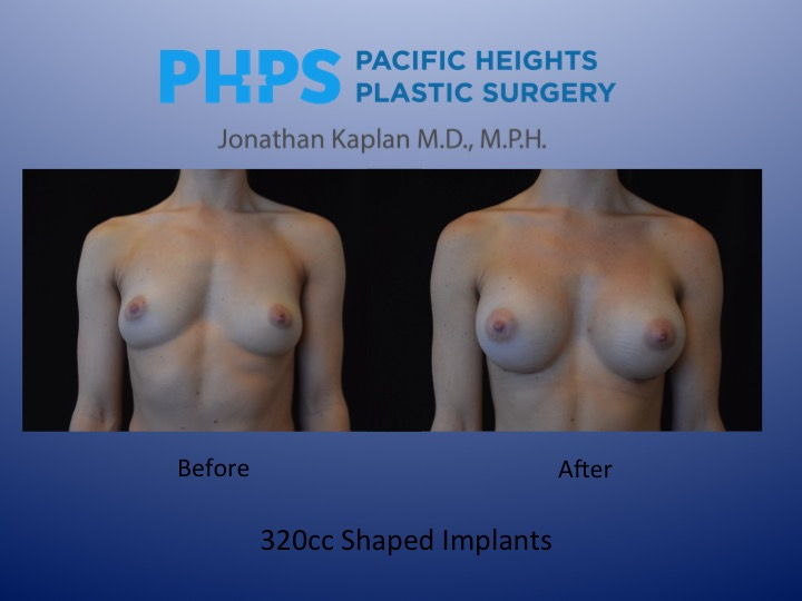 shaped breast implant