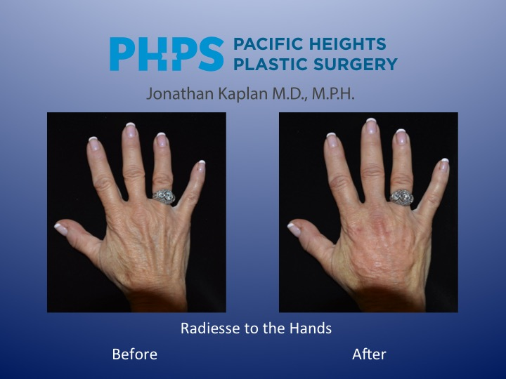 anti-aging of the hands
