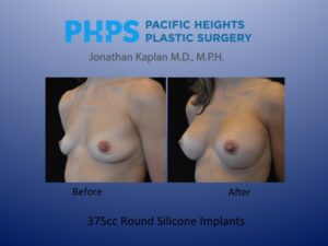 fat injections to the breast
