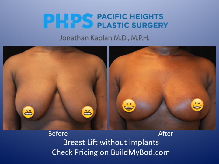 Breast Lift Without Implants 87