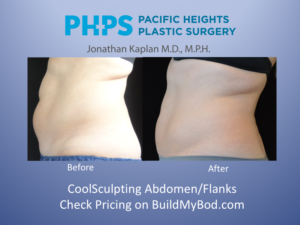 repeat coolsculpting treatments