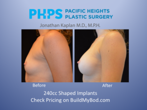 postop recovery after breast augmentation