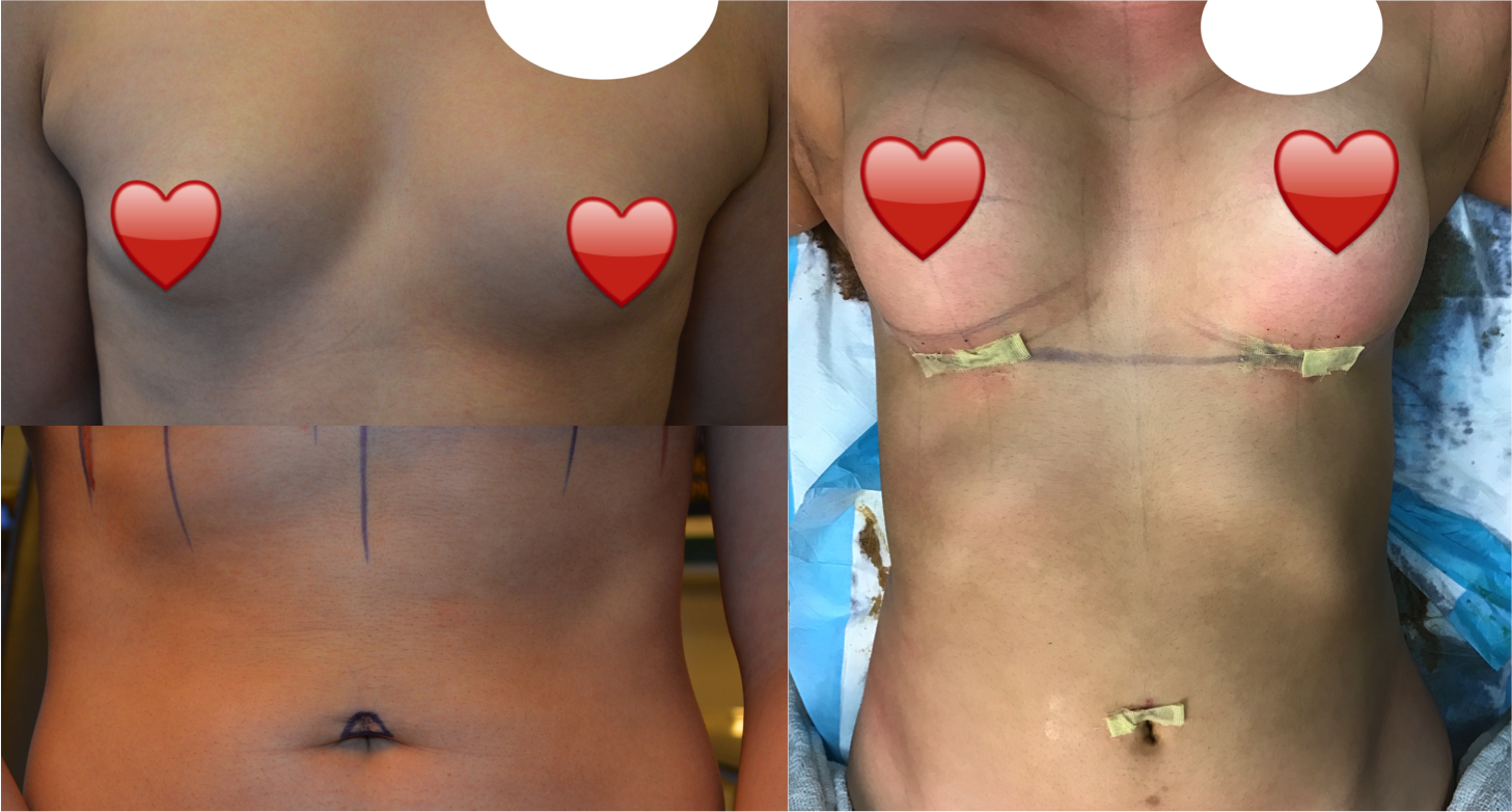 Breast Augmentation And Belly Button Piercing Removal Combo Procedure