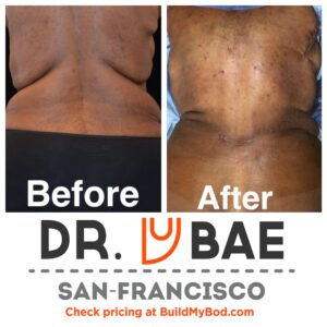 skin removal vs liposuction