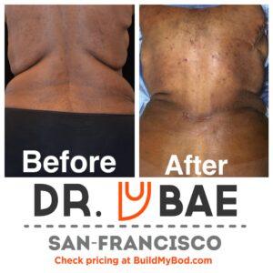 skin removal vs liposuction