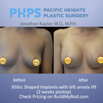 myths of breast augmentation