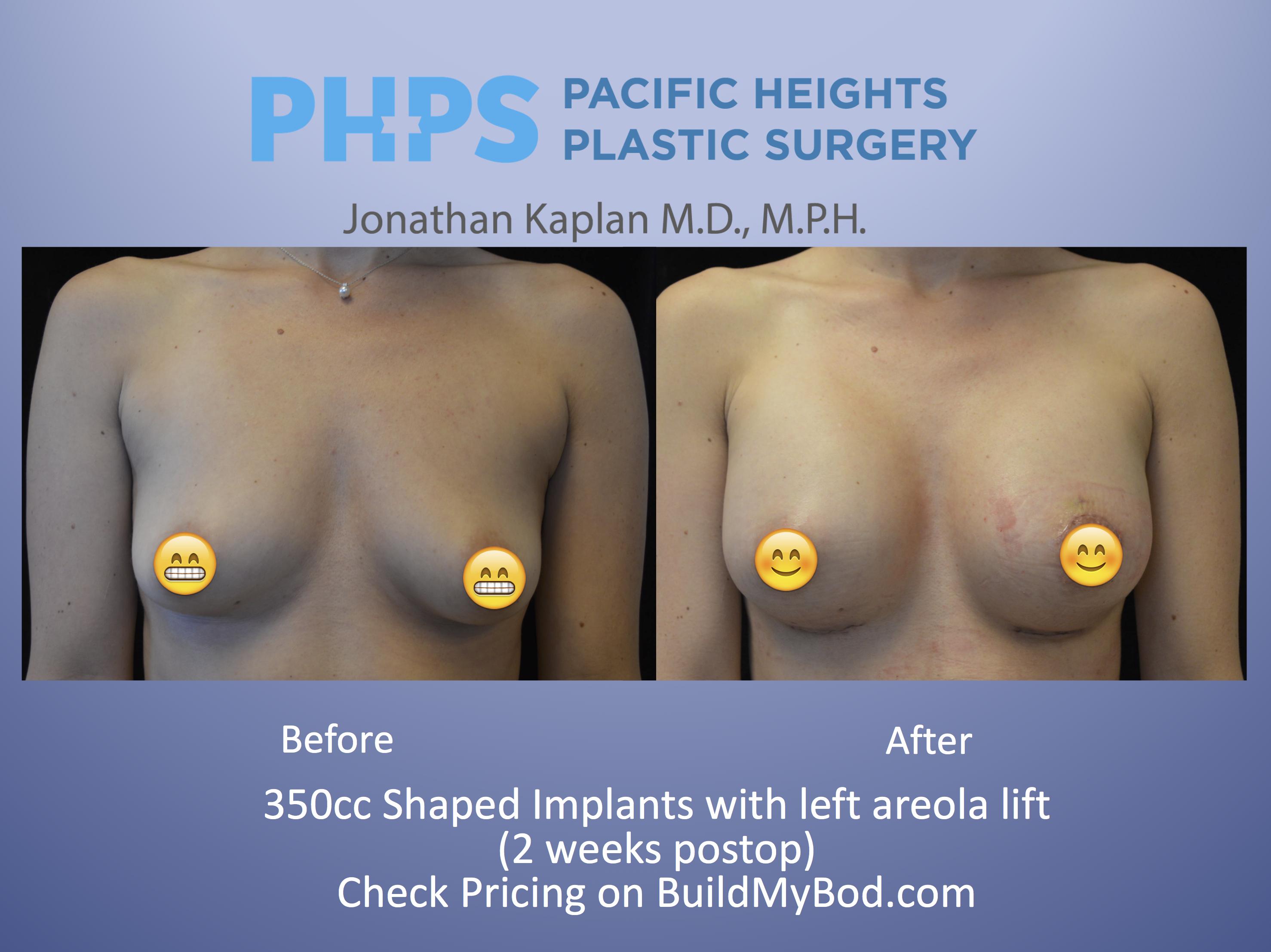 myths of breast augmentation