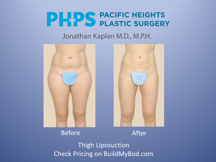 myths of liposuction