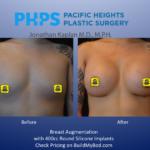postop breast