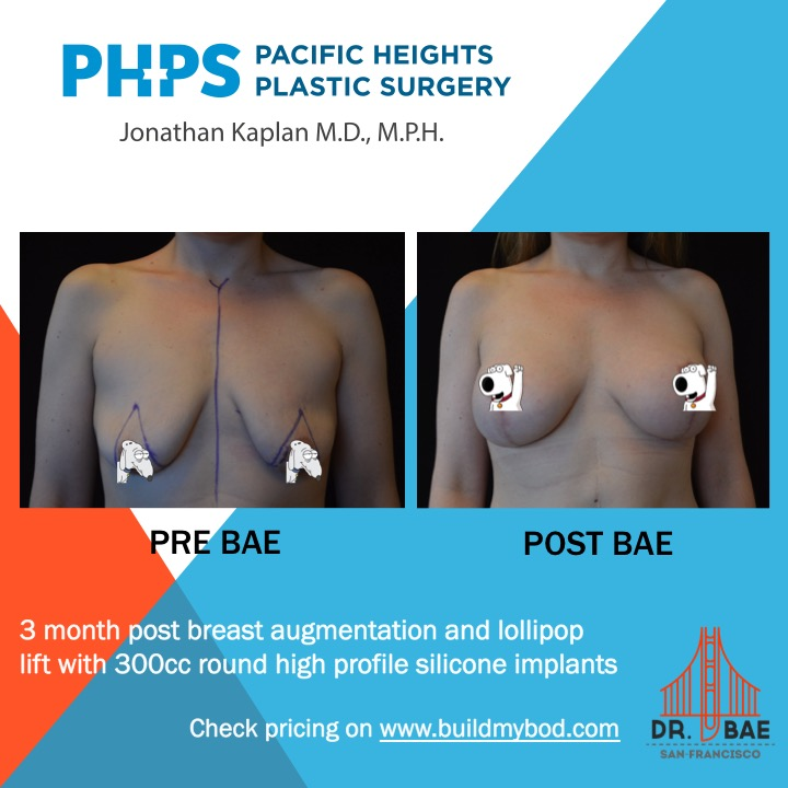 breast lift incisions