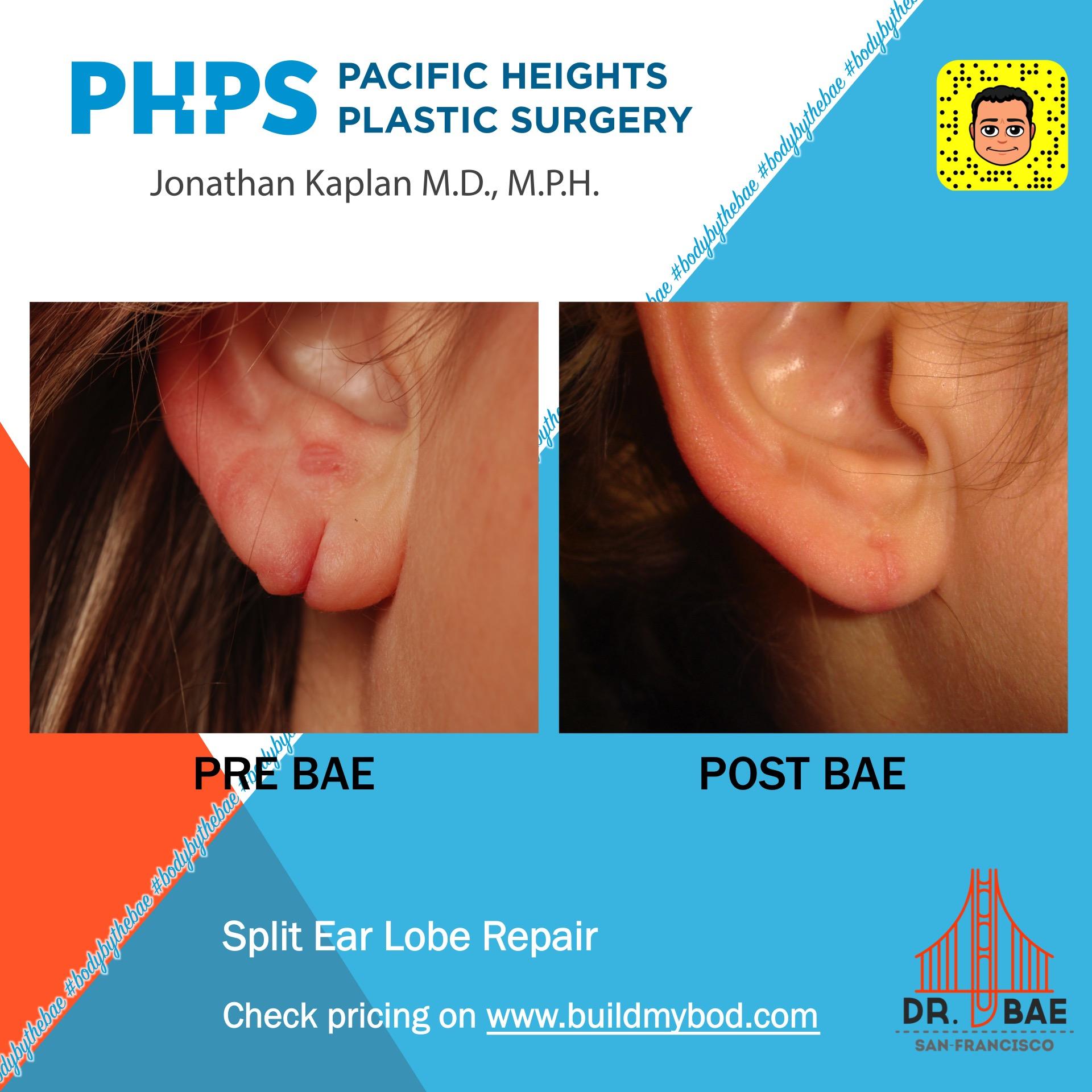 ear lobe surgery