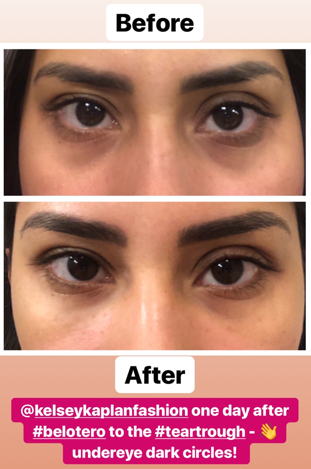 Treatment For Undereye Dark Circles [video]