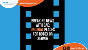 places to use botox or xeomin